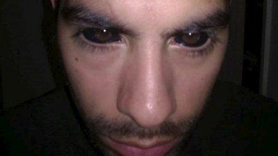 <center><b>Татуировки на глазных яблоках</center></b>